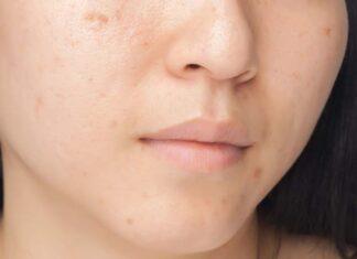 Kosmetyki do cery naczynkowej